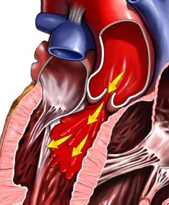 hipertenzija 1 laipsnis kas tai