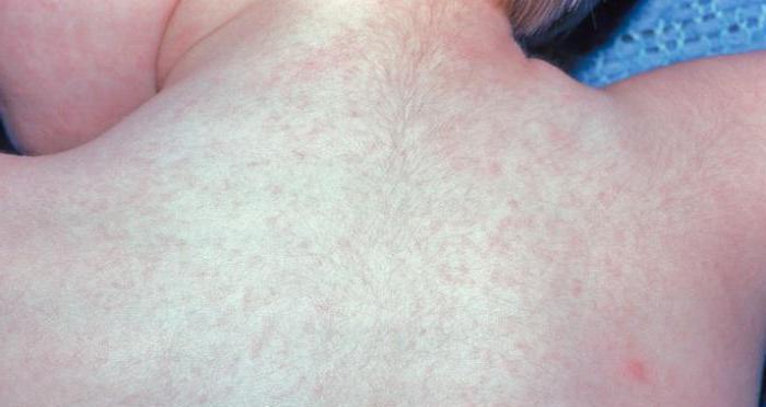 Մաշկաբանները հայտնաբերել են կորոնավիրուսի նոր ախտանիշ.դրանք երբեմն ցավոտ են լինում