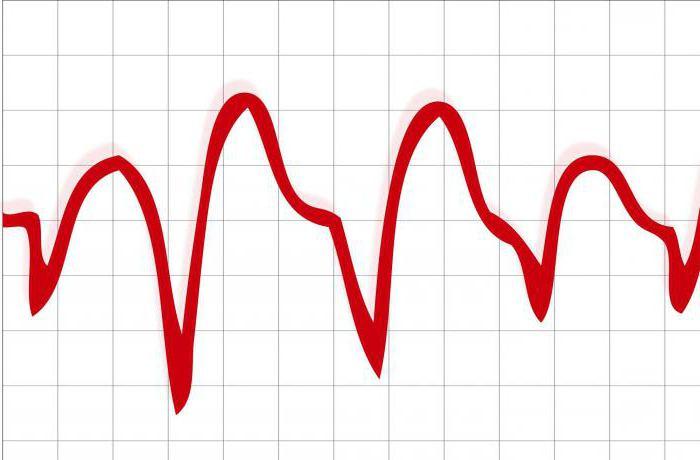 vérnyomásnapló online