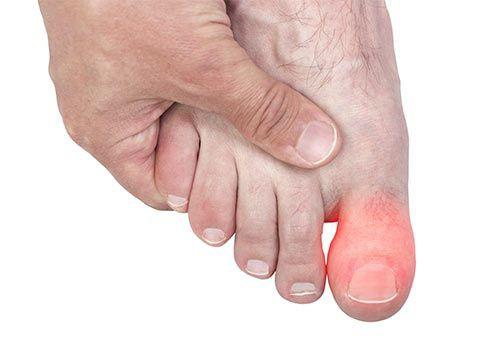 nagy lábujj törés tünetei fülízület ízületi gyulladása